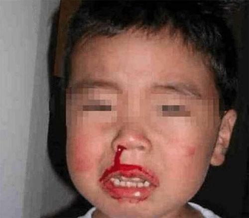 Sơ cứu sai cách đã khiến cậu bé Trung Quốc không may mất mạng (Ảnh minh họa).