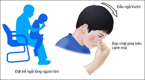 Các bước sơ cứu đúng cách nên được áp dụng khi trẻ bị chảy máu cam (Ảnh: BV Nhi Trung ương).
