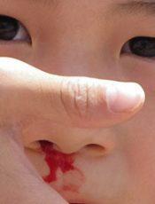Trẻ Bị Chảy Máu Cam Đừng Ngửa Đầu Ra Sau