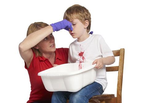 Yêu cầu trẻ xì mũi nhẹ nhàng để loại bỏ các cục máu đông đã hình thành bên trong mũi (Ảnh minh họa).